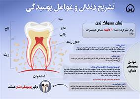 اینفوگرافی/تشریح دندان و عوامل پوسیدگی آن